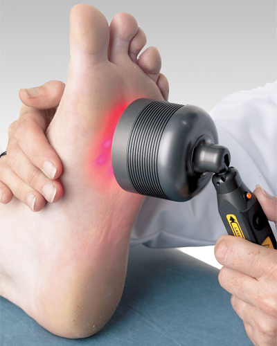 Laser Fungal Treatment