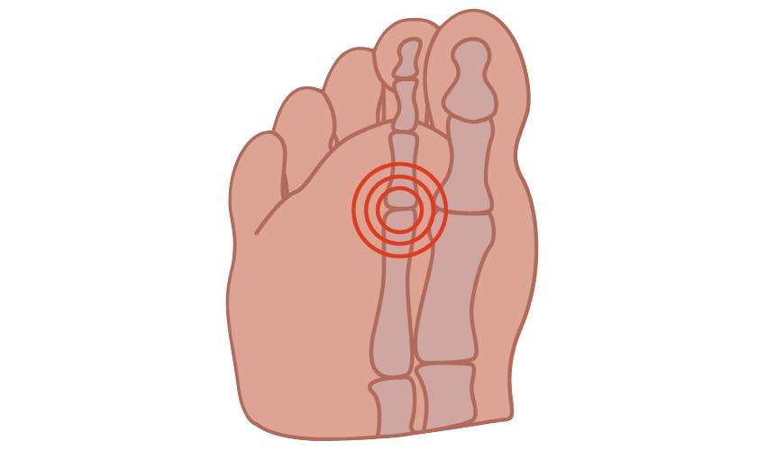 Capsulitis feet