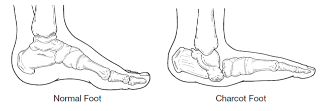 Charcot Foot Example
